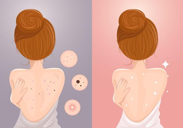 L'acne ha causato sul retro
