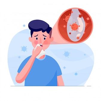 L'uomo ha il sintomo di tosse, moccio o secrezione del virus della corona in stile piatto. virus corona mondiale e concetto di attacco covid-19.