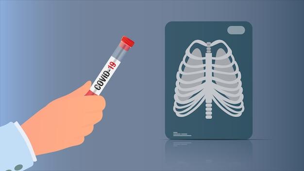 La mano tiene il test da coronavirus. radiografia dei polmoni. provetta con test di coronavirus. illustrazione.