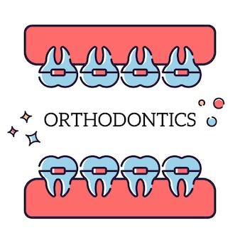 Mascella con i denti nell'illustrazione delle parentesi graffe