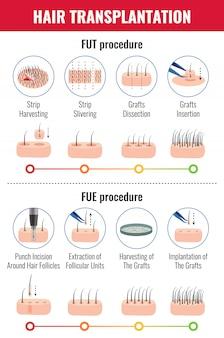 Metodi di trapianto di capelli con fasi di infografica della procedura su bianco