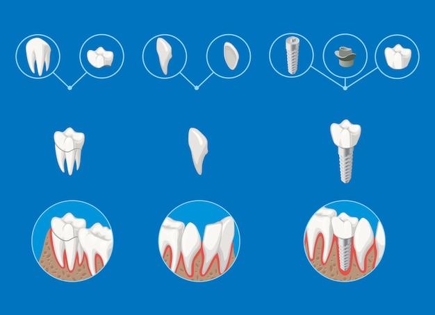 Modello di infografica di odontoiatria protesica isometrica con impiallacciatura di corona