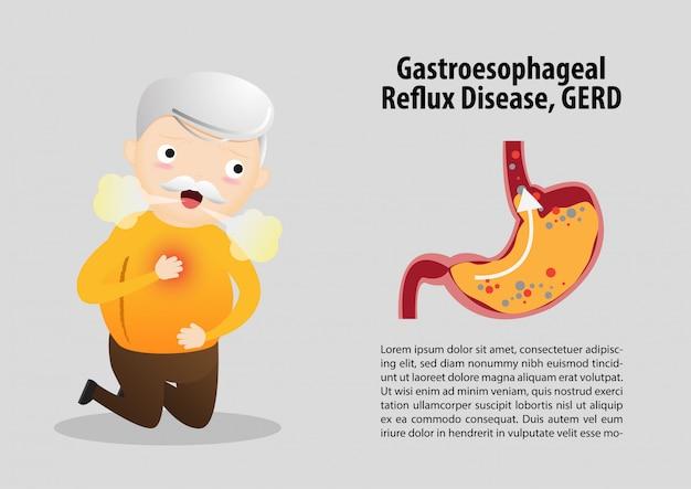 Modello di malattia da reflusso gastroesofageo (gerd)
