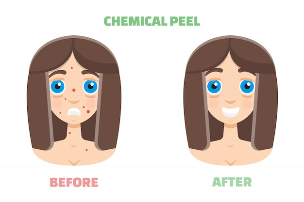 Peeling chimico