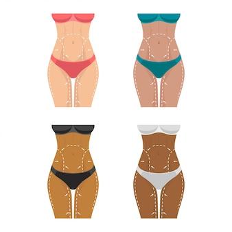 Perdita di peso, segni sul corpo femminile per la chirurgia plastica.