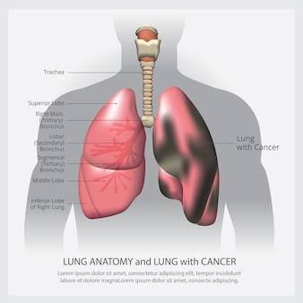 Polmone con dettagli e cancro ai polmoni