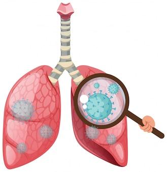 Polmoni umani con cellule di coronavirus che si diffondono sul bianco