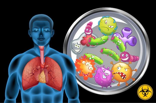 Polmoni umani pieni di malattie su sfondo nero
