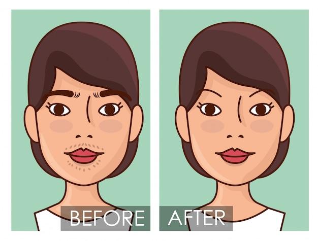 Prima e dopo la donna con il trattamento di depilazione