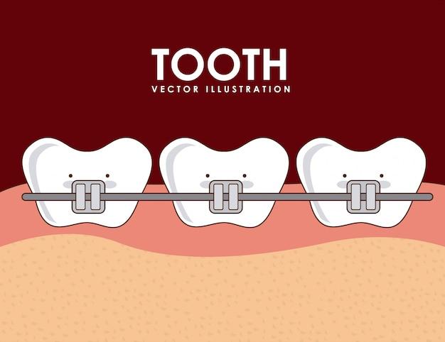 Progettazione dentale