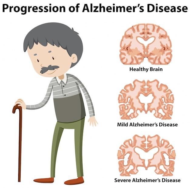 Progressione del morbo di alzheimer