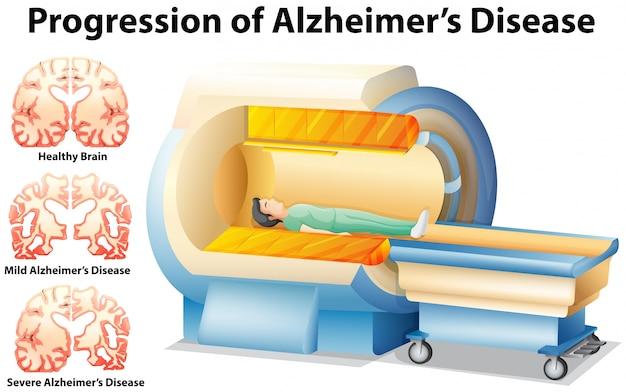 Progressione della malattia di alzheimer