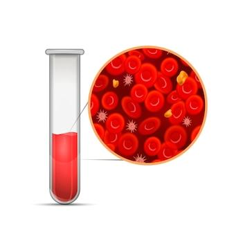 Provetta medica lucida con composizione di sangue rosso infografica con eritrociti, globuli bianchi, colesterolo e plasma su bianco
