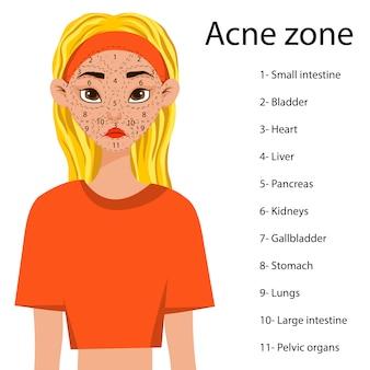 Ragazza con uno schema di aree problematiche sul viso con una predisposizione all'acne. stile cartone animato.