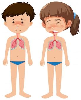Ragazzo e ragazza malati con coronavirus su bianco