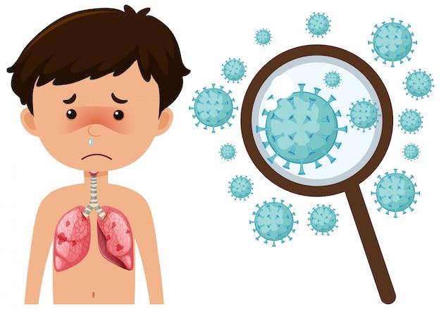 Ragazzo malato di coronavirus con cellule zoom up