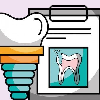 Rapporto del dente rotto della lavagna per appunti dell'impianto dentale