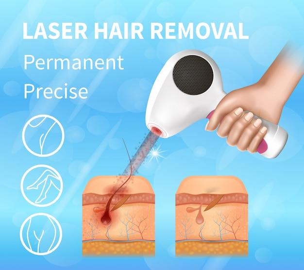 Rimozione laser per capelli, banner preciso permanente.