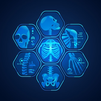 Scansione scheletro
