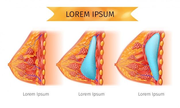 Schema medico vettoriale di brest implant