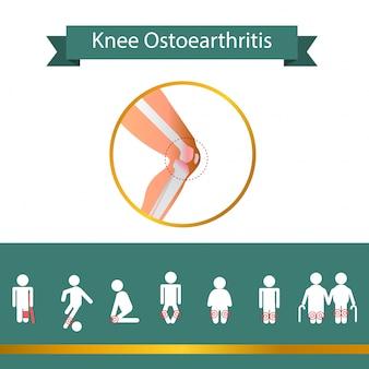 Segno problema al ginocchio