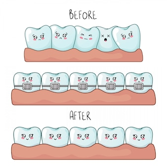 Set di denti kawaii con emodji, personaggi dei cartoni animati