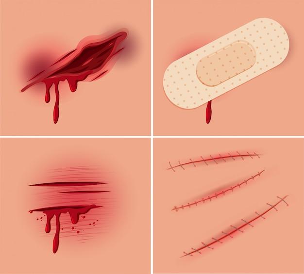 Set di ferite fresche