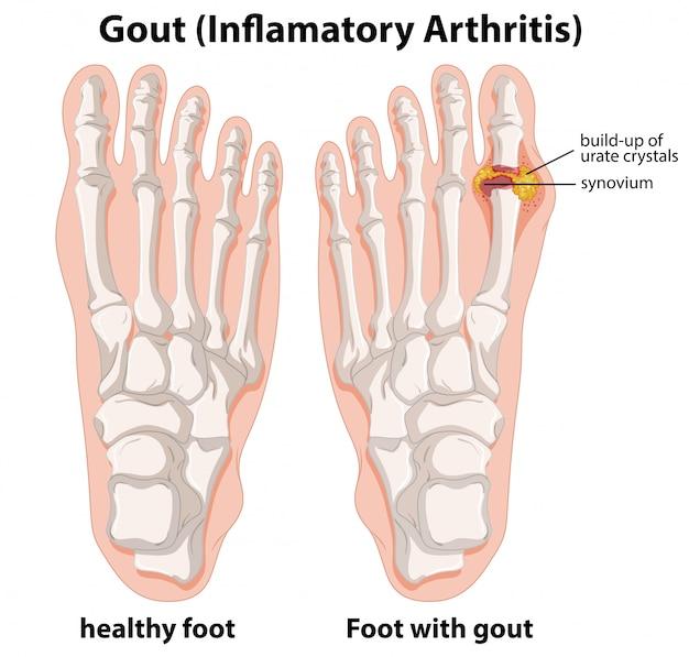 Spiegazione schematica della gotta nel piede umano