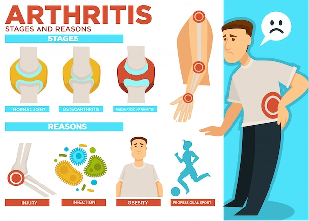 Stadi di artrite e ragioni del poster della malattia