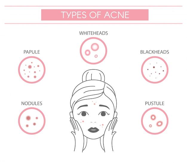 Tipi di acne, noduli di brufoli, papule, punti bianchi, punti neri, pustole.