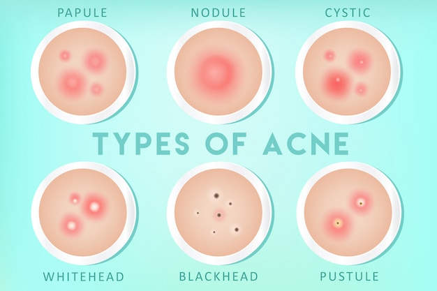 Tipi di acne