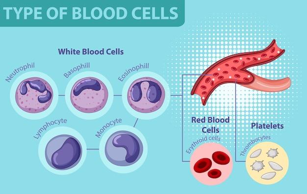 Tipo di cellule del sangue