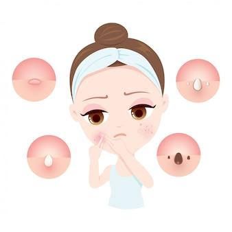 Tipo di donne dell'acne