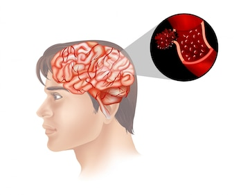 Tumore al cervello in umani