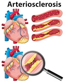 Un cuore con arteriosclerosi su sfondo bianco