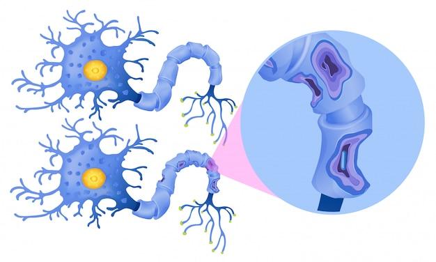 Un insieme di cellule nervose umane