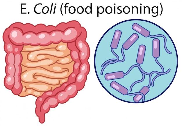 Un vettore di batteri e coli