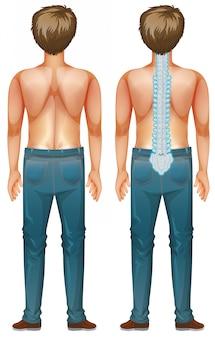 Uomo che mostra la lesione del midollo spinale