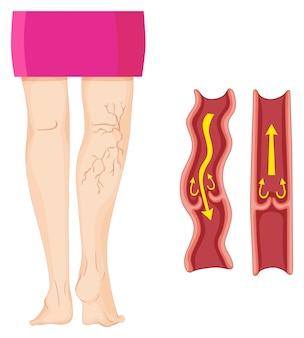 Vene varicose nella gamba umana