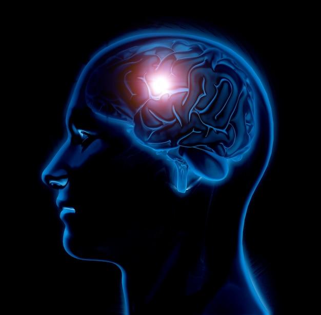 3d mannelijke medische figuur met hersenen gemarkeerd