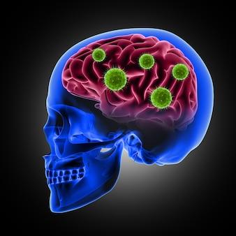 3d render van een mannelijke schedel met viruscellen die de hersenen aanvallen