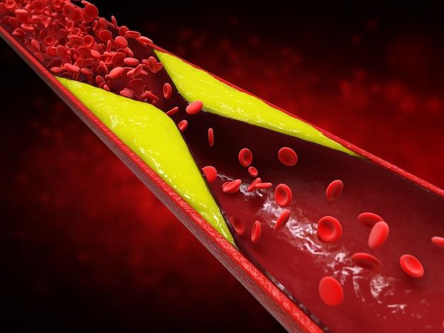3d-rendering atherosclerose met cholesterolbloed of plaque in vat oorzaak van coronaire hartziekte