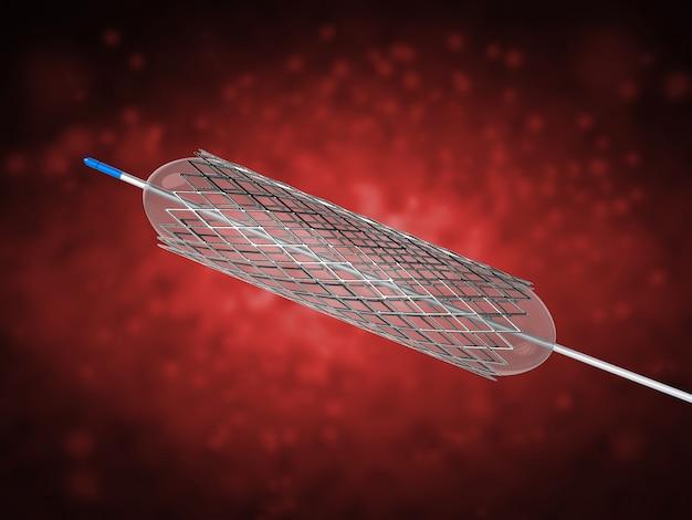3d-renderingstent of katheter voor ballonangioplastiek