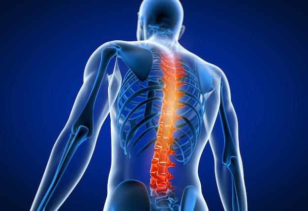 3d teruggegeven illustratie van een mens die een pijnlijke rug heeft