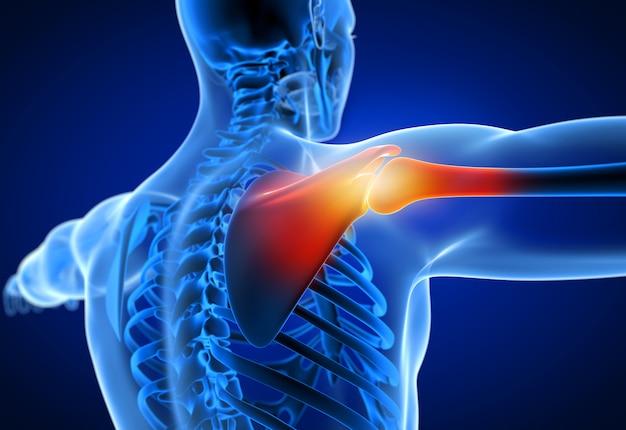 3d teruggegeven illustratie van een mens die een pijnlijke schouder heeft