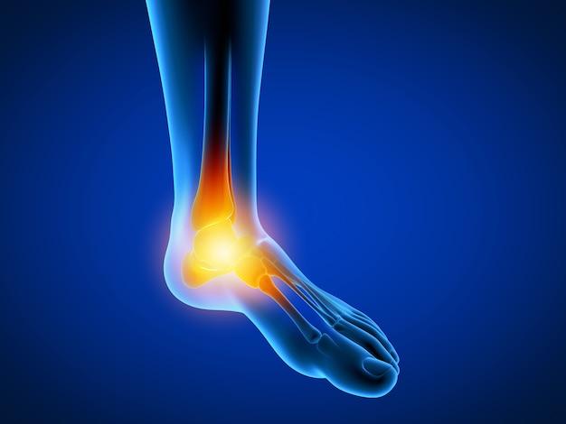 3d teruggegeven illustratie van een mens die een pijnlijke voet heeft
