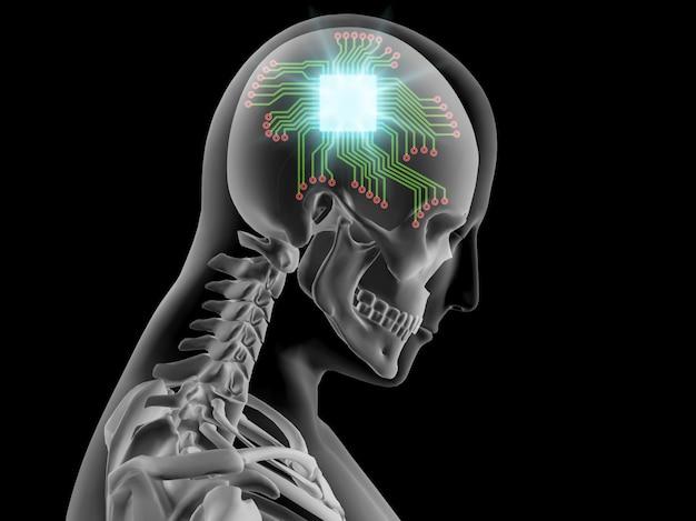 3d x-ray van menselijk brein met computerchip en circuit