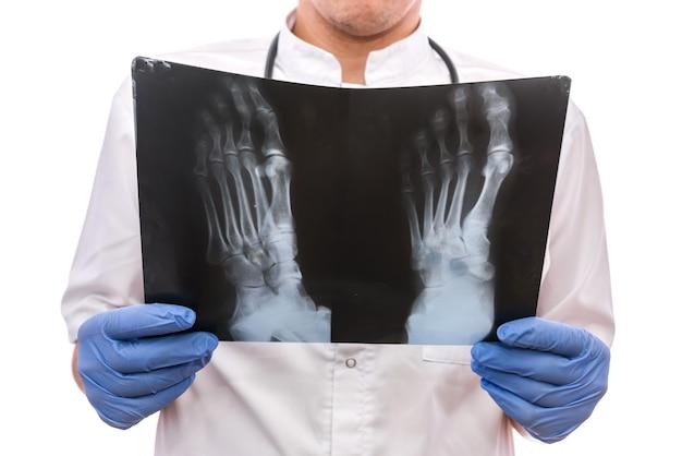 Aantrekkelijke arts die een voetröntgenstraal houdt