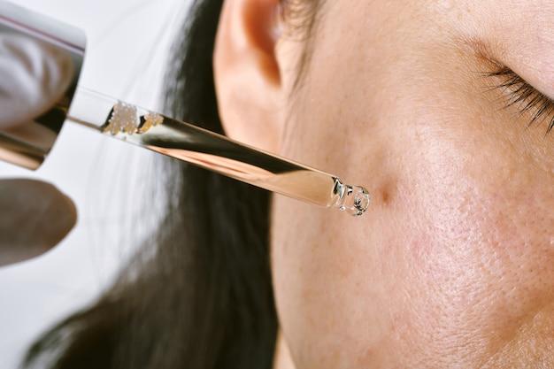 Acne huidbehandeling dermatoloog arts serum laten vallen om puistjes huidprobleem te herstellen.