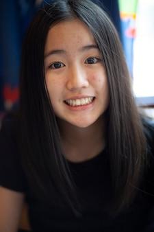 Acnegezicht van het aziatische tiener toothy glimlachen